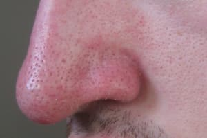 Bad Case Of Blackheads