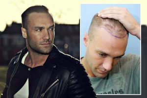 Callum Best Hair Loss Cosmetic Treatment