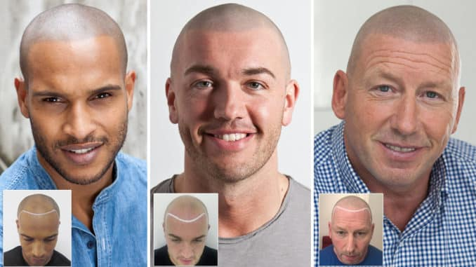 Scalp micro pigmentation before and after pictures